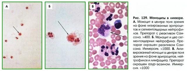 О чем говорит изменение уровня моноцитов в крови?