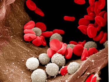 Рост лейкоцитов в крови может обернуться серьезным заболеванием