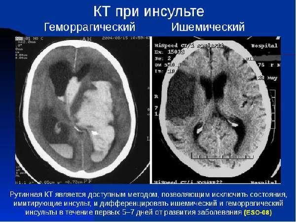Предвестники инсульта, его симптомы и первые признаки