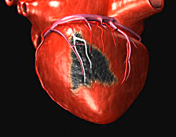 Считается ли инфаркт смертельным заболеванием