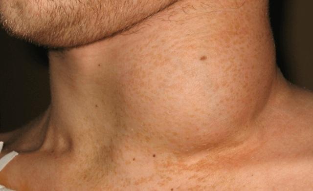 Что стоит за диагнозом «лейкопения»?