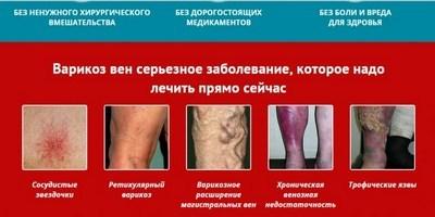 Гирудотерапия, как альтернативный метод лечения варикоза на ногах