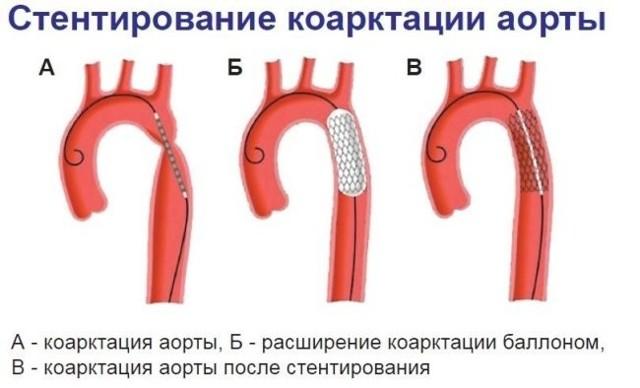 Причины, лечение и прогноз при коарктации аорты