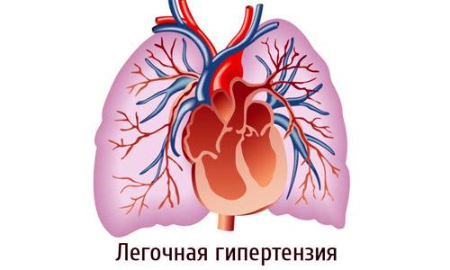Дилатация предсердий и желудочков сердца