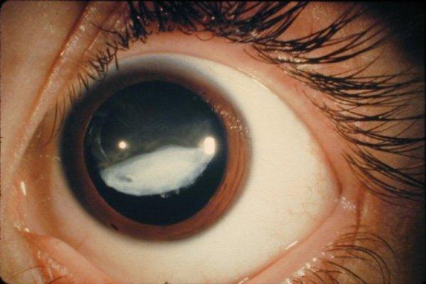 Чем грозит давление в глазах и как его вылечить?