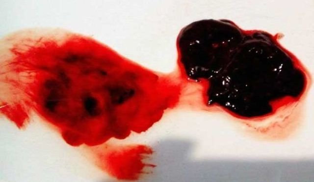 Тромбоз геморроидального узла фото