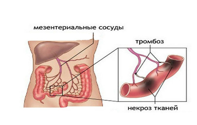 Острая окклюзия мезентериальных сосудов - причины, симптомы, диагностика и лечение