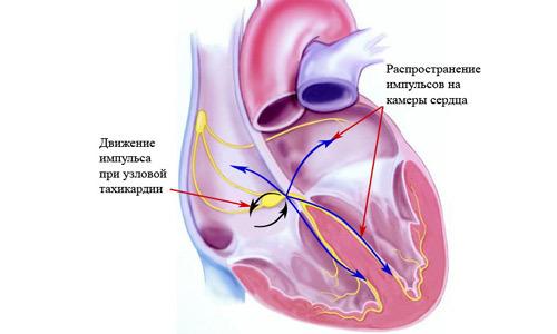 Причины, диагностика и лечение пароксизмальной тахикардии