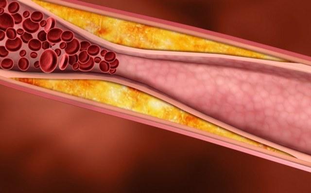 Методы нормализации уровня холестерина в крови