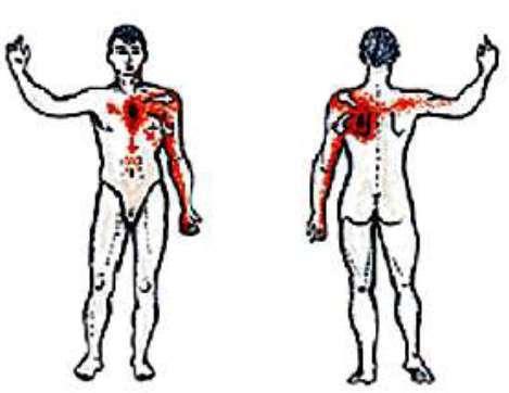 Симптомы стенокардии: как опознать и не опоздать?