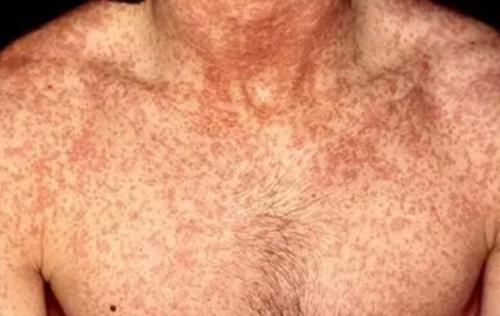 Проявления геморрагической лихорадки с почечным синдромом