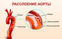 Что нужно делать в первую очередь при боли в сердце?