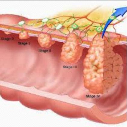 Обильное выделение крови из заднего прохода