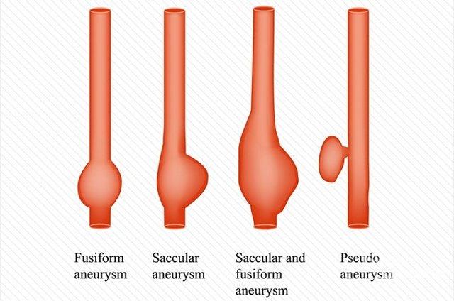 Что такое аневризма и почему она так опасна?
