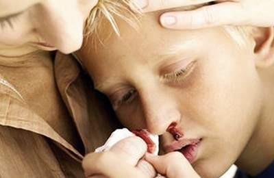 Причины, клиника и методы лечения гемофилии