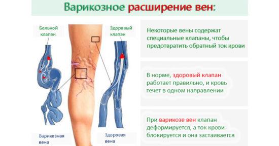 Кому показано и как проводится УЗДГ сосудов ног?