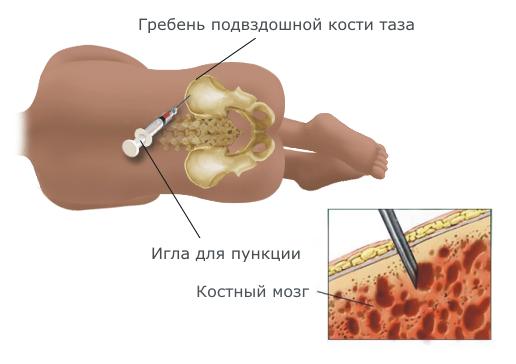 Лейкемия: причины, симптомы, диагностика, лечение