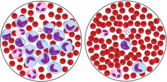 dbab9faaf21d9c06197b4648c1a51e4a - Uloga i funkcija monocita makrofaga u normi u analizi uzroka promjena u