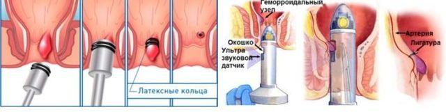 Методы лечения геморроя без операции