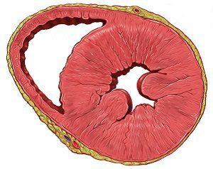 Функции левого желудочка сердца и причины возможных заболеваний
