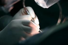 Диагностика и лечение аневризмы брюшной аорты