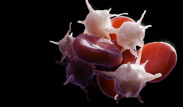 Отклонение от нормы среднего объема тромбоцитов