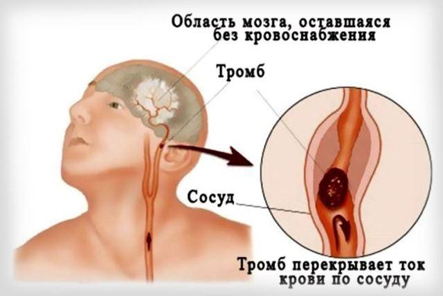 Виды, лечение и профилактика заболеваний сосудов головы