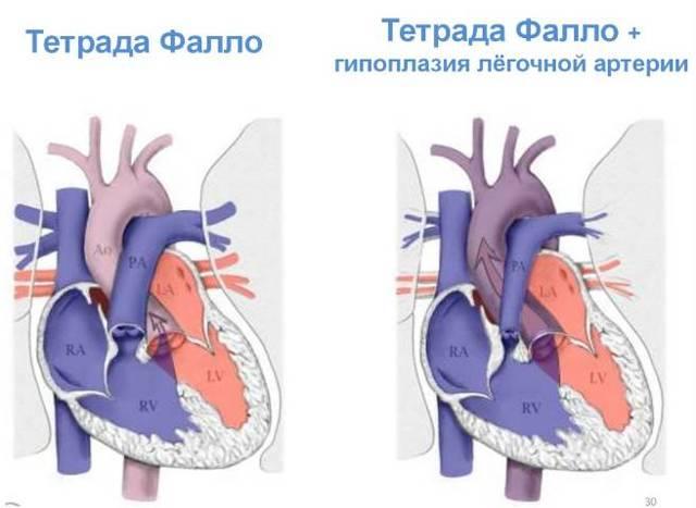 Когда необходимо лечение шумов в сердце у ребенка?