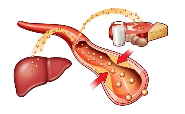 Что такое плохой и хороший холестерол (холестерин)?