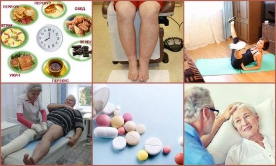 Ход операции флебэктомии, реабилитация и прогноз