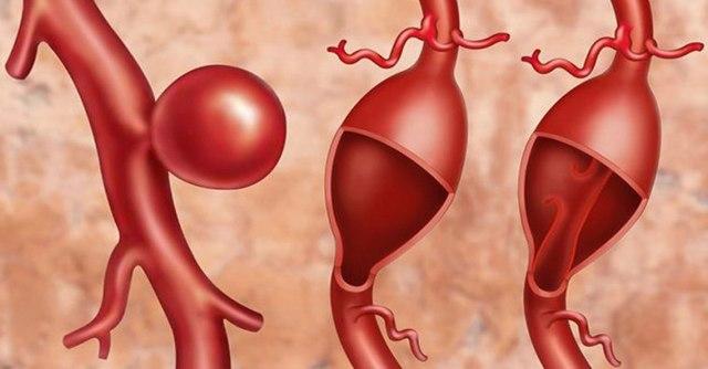Грозит ли жизни человека аневризма?