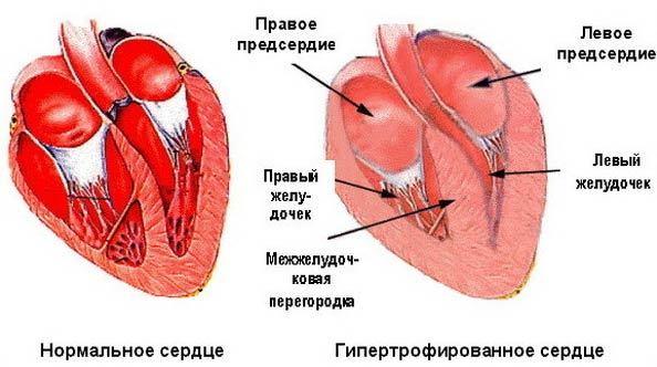 Как избежать остановки сердца при AV блокаде