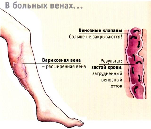 Что значит варикоз, каковы его причины и симптомы?