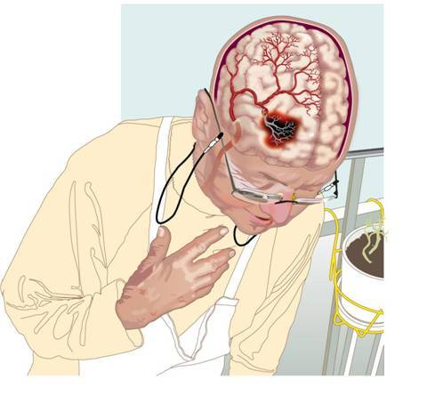 Методы лечения и профилактики ПНМК