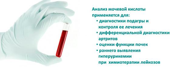 О чем говорят показатели содержания мочевой кислоты в крови?