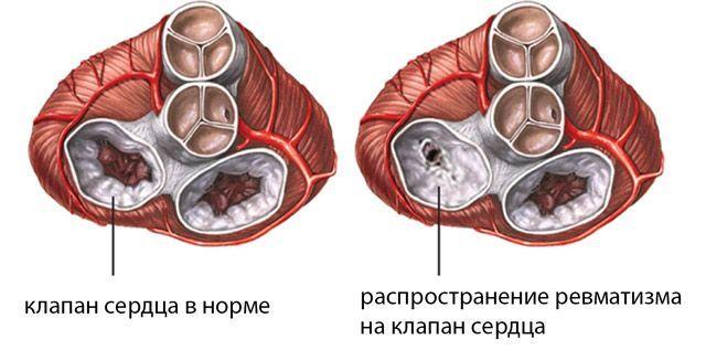 Диагностика, лечение и профилактика ревмокардита