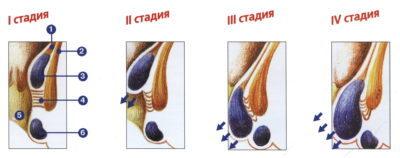 Описание стадий геморроя и методы лечения
