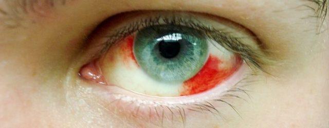 Лопнул капилляр в глазу: причины, симптомы, лечение