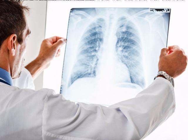 Синдром Гудпасчера - причины, симптомы, диагностика и лечение
