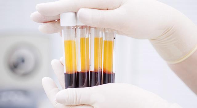 Норма и отклонения показателя hct в анализе крови