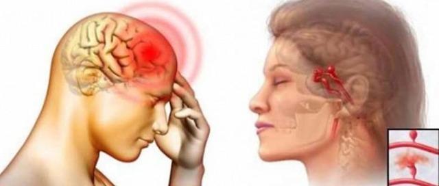 Симптомы, диагностика и лечение аневризмы мозговых сосудов