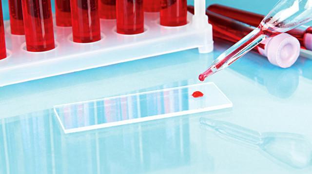 Основные характеристики третьей группы крови