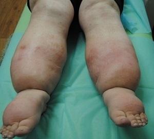 Причины, диагностика и лечение лимфостаза ног