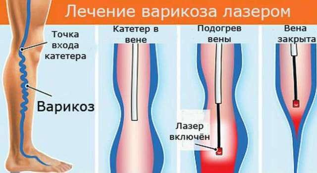 Панацея против варикоза – лазерная коагуляция